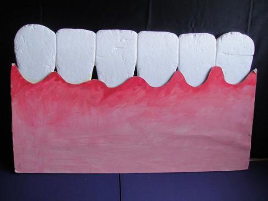 歯肉炎媒体3