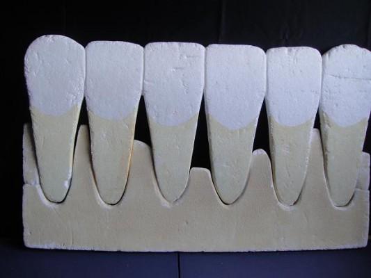 歯肉炎媒体5