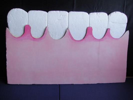 歯肉炎媒体2