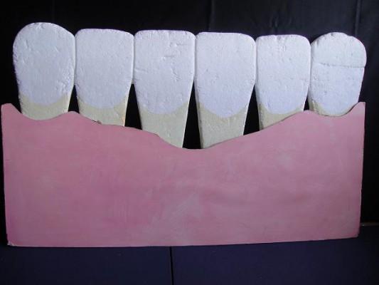 歯肉炎媒体4