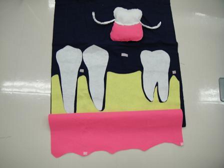 一本義歯媒体3