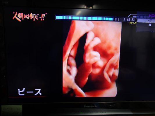 胎児ピース